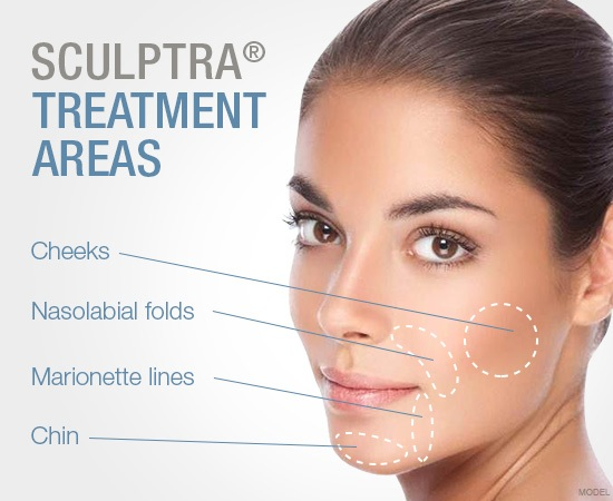 Sculptra Treatment